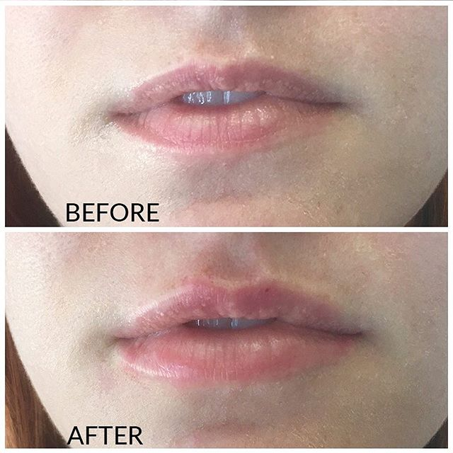 houston lip injection before & after