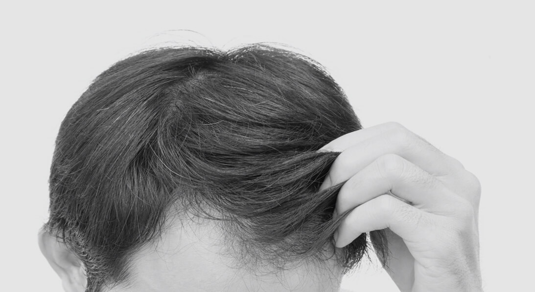 male hair transplant houston