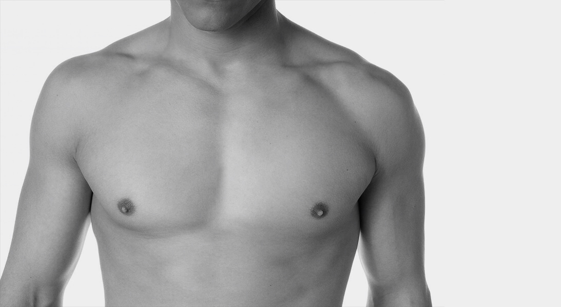 pec implants houston