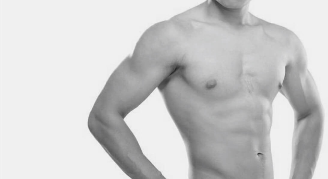 Gynecomastia plastic surgery procedure