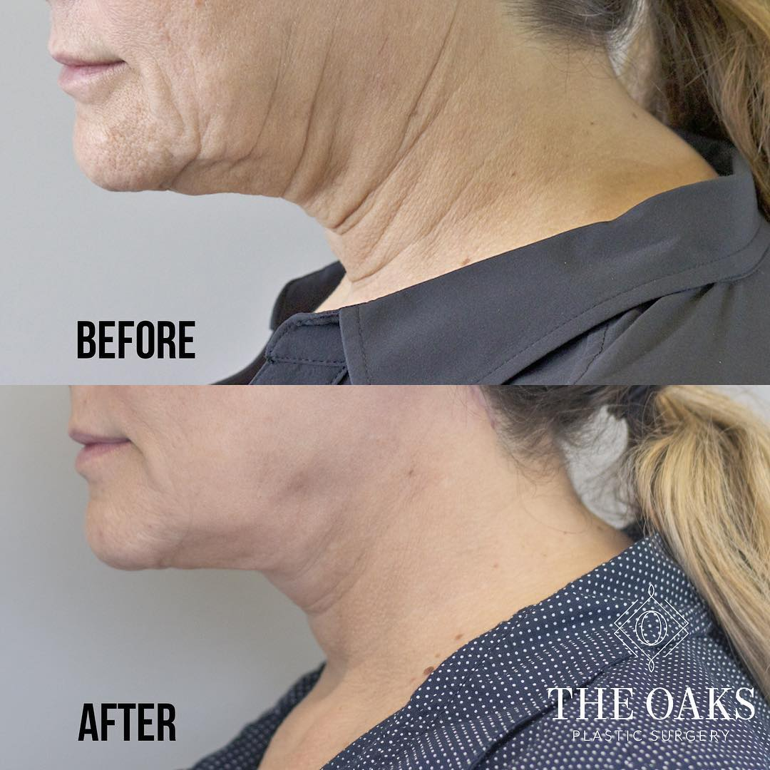 kybella before & after houston