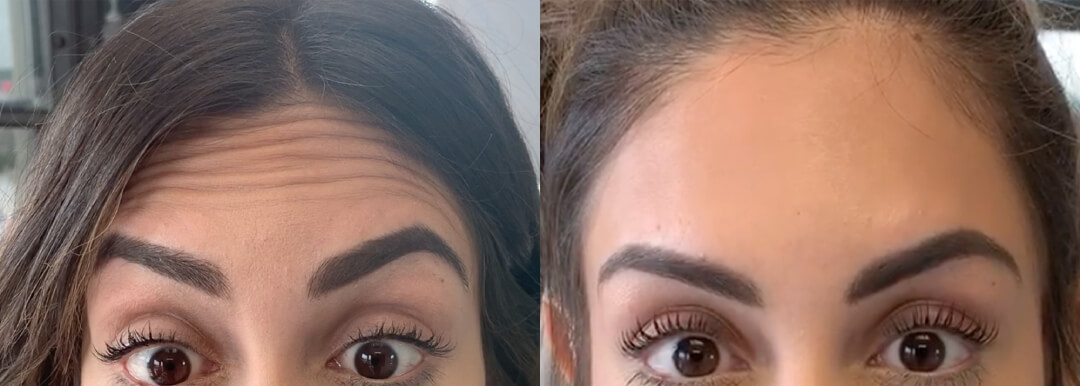 Houston Botox Forehead Before & After | TOPS