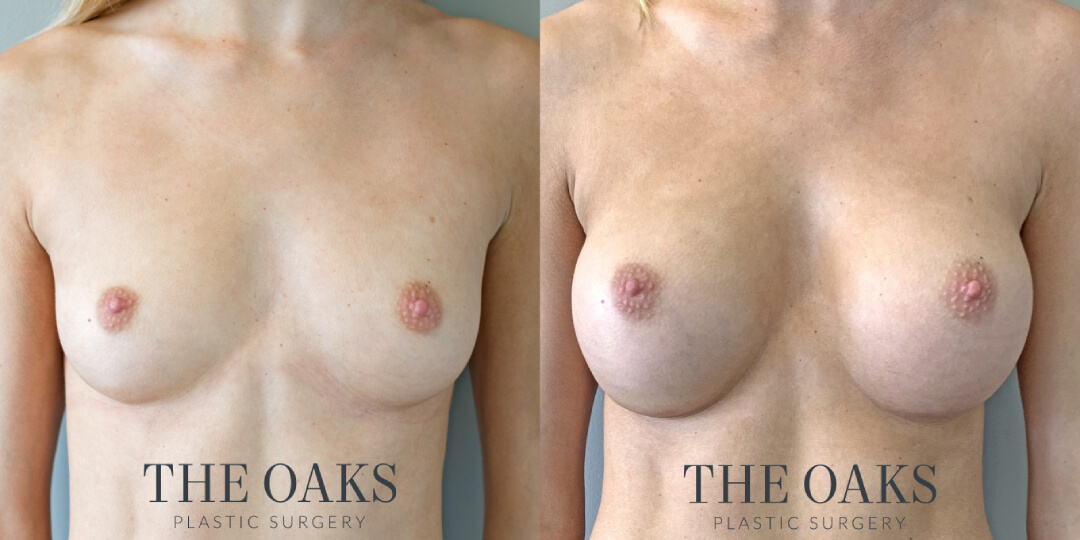 Breast Augmentation Houston Before & After | TOPS