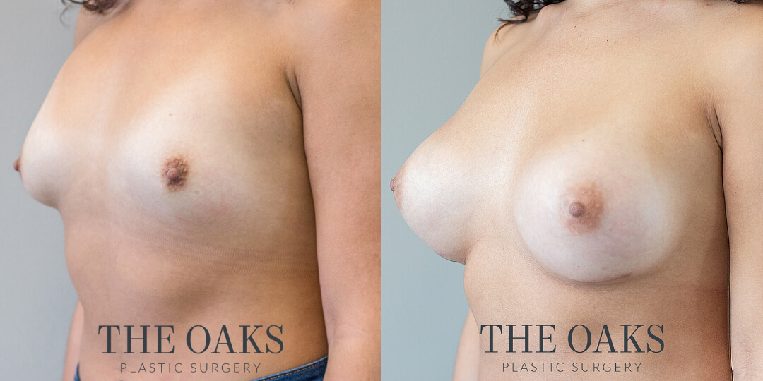 Houston Breast Augmentation Before & After #5 | Dr. Nandi Wijay