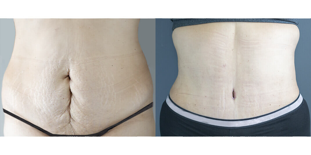 tummy tuck before and after houston