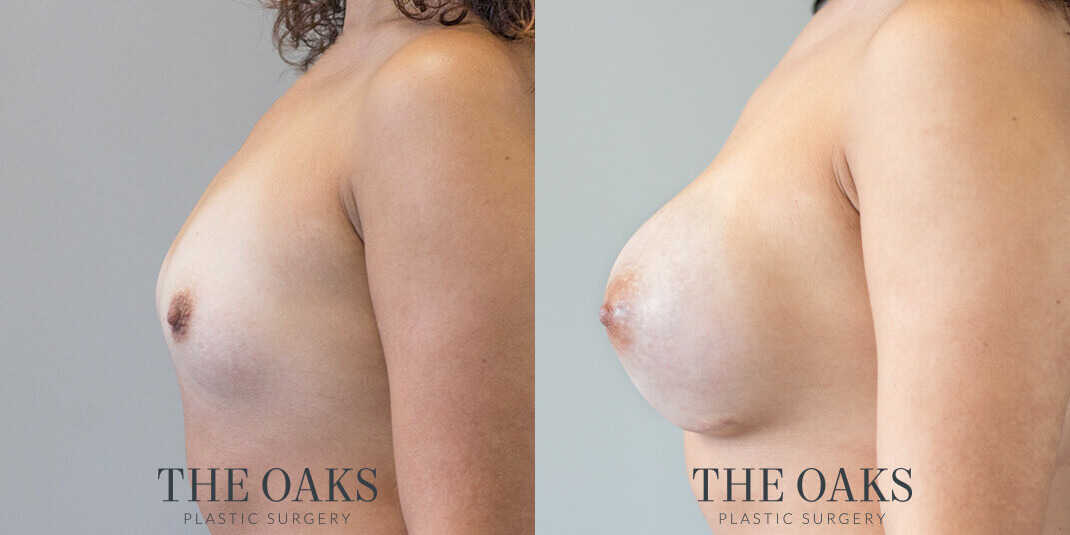 houston breast augmentation before and after