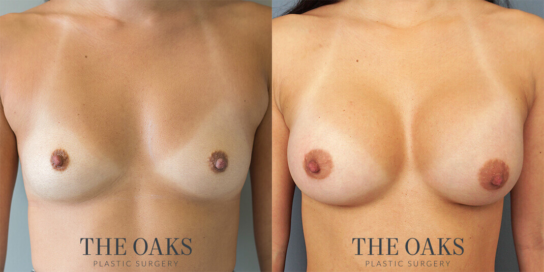 Houston Breast Augmentation Before & After | TOPS #6
