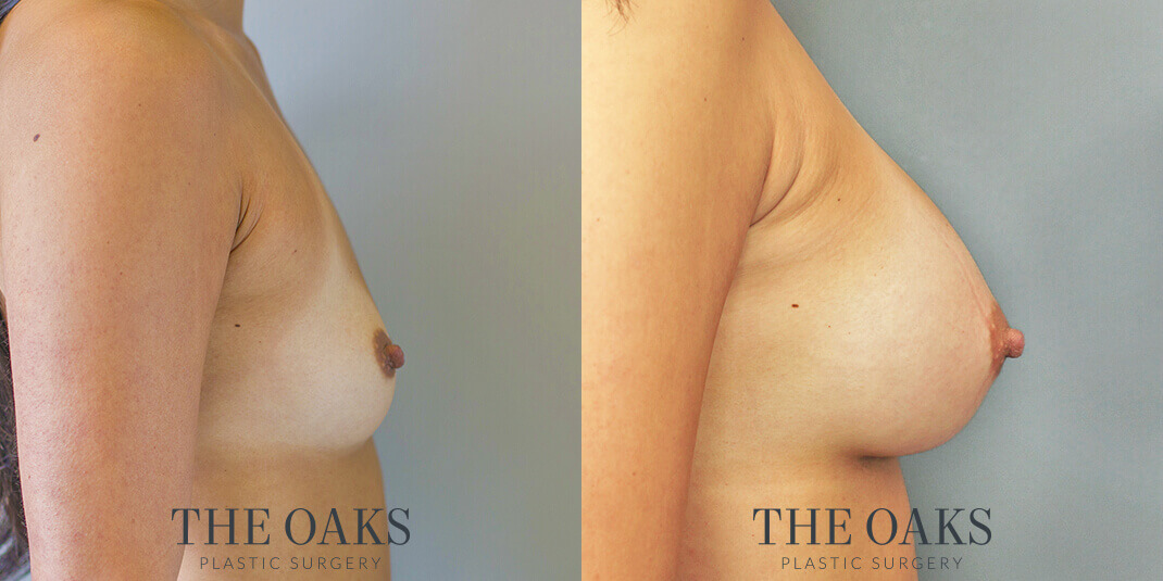 houston breast augmentation before & after