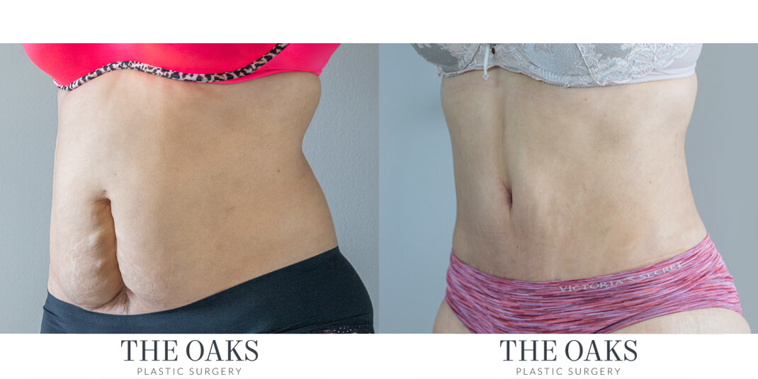 houston lipo before & after