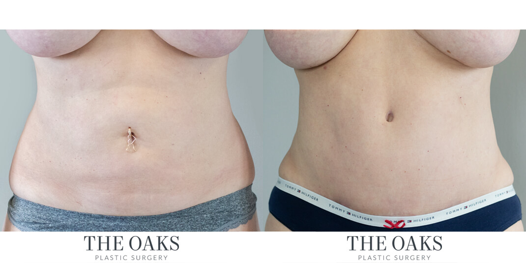 houston tummy tuck before & after