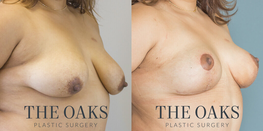 Breast Lift Houston Before & After | TOPS