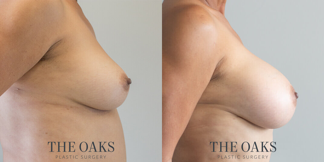 breast augmentation houston before & after