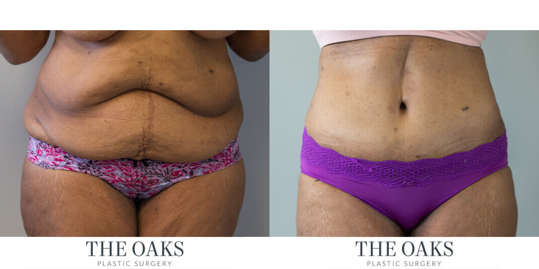 Houston Tummy Tuck Before & After | TOPS #6