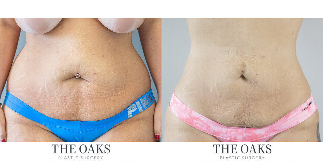 Houston Liposuction Before & After | TOPS #1