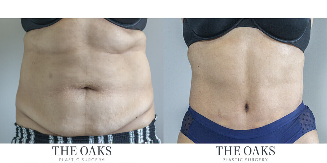 Tummy Tuck Houston Before & After | TOPS #1