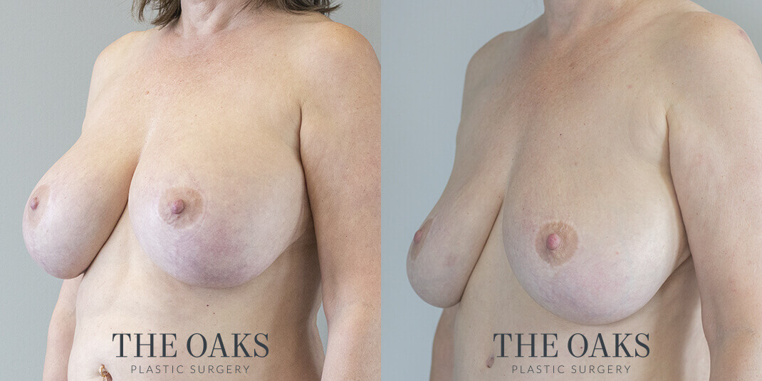 Breast Implant Removal Houston Before & After #1 | Dr. Danielle Andry