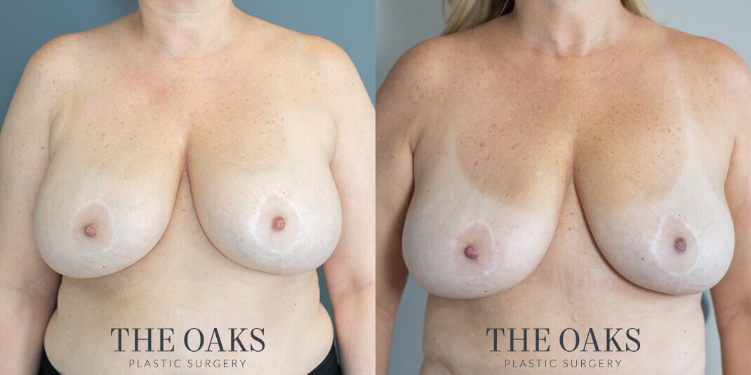 Breast Implant Removal Houston Before & After #1 | Dr. Wijay