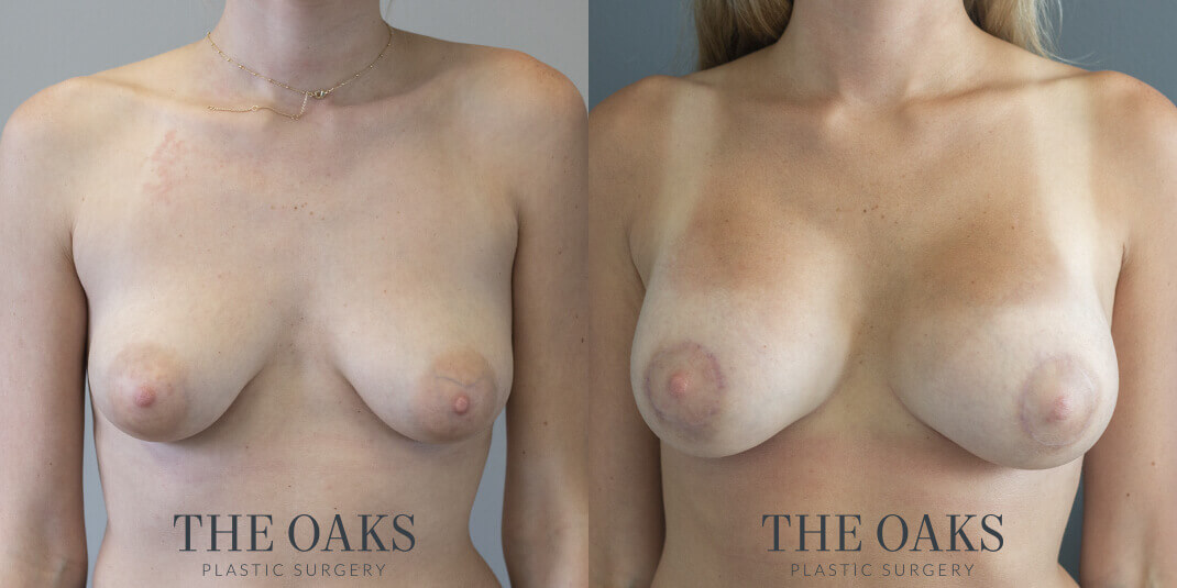 Breast Augmentation with Lift Houston Before & After | TOPS