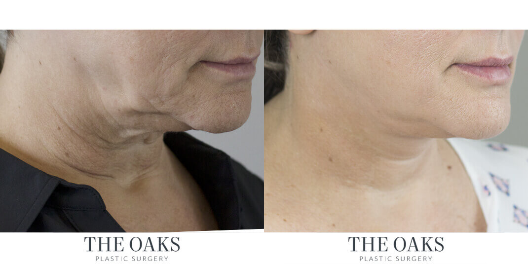 Necklift Before & After | TOPS