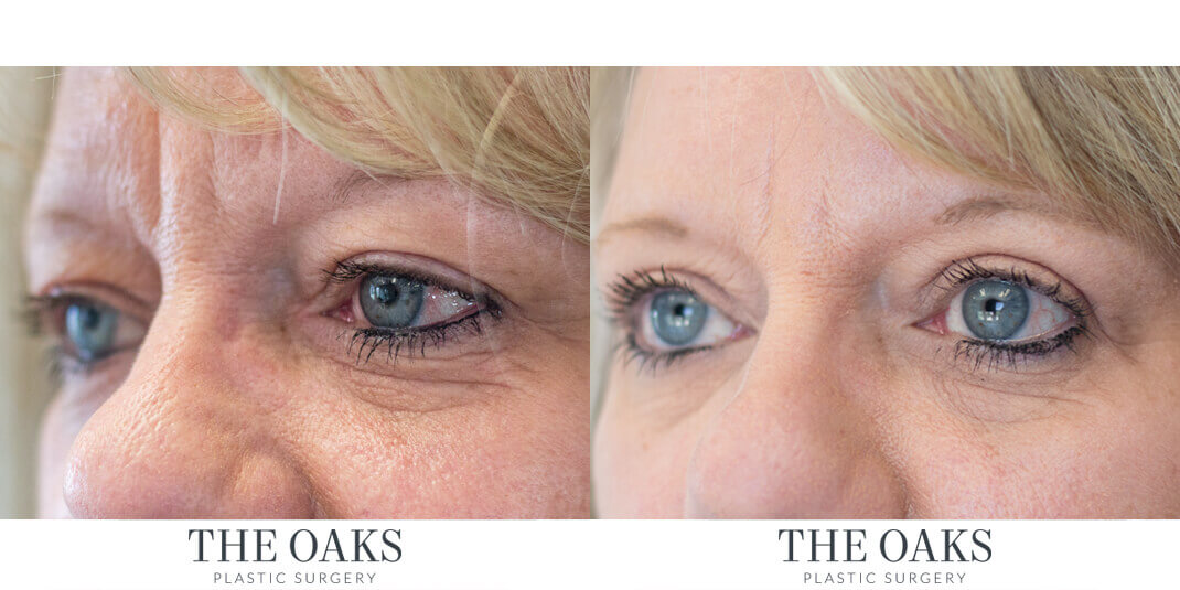 Eyelid Surgery Houston Before & After | TOPS #1