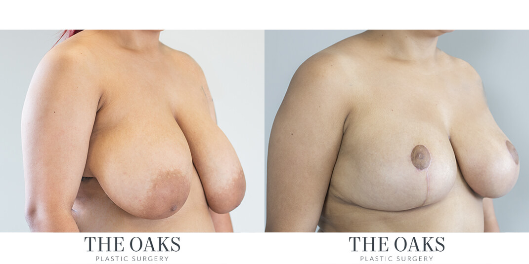 Breast Reduction  |  Houston Before & After #1 | Dr. Danielle Andry