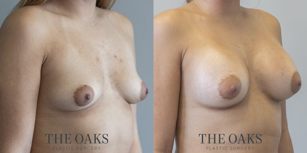 Breast Augmentation Houston Before & After #1 | Dr. Wijay