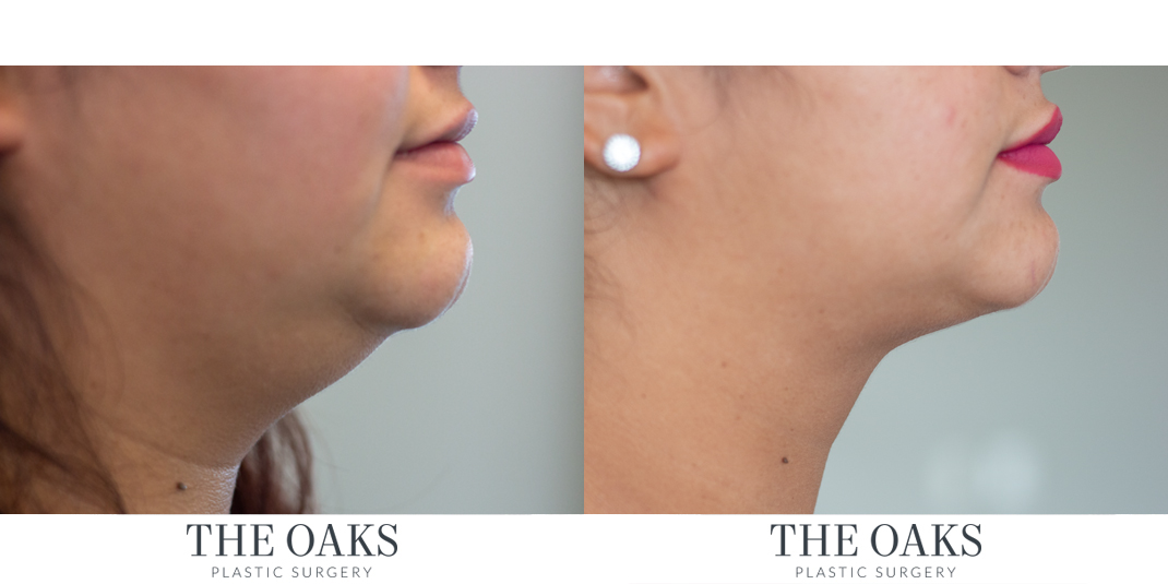 Neck Liposuction Houston Before & After #1 | Dr. Danielle Andry