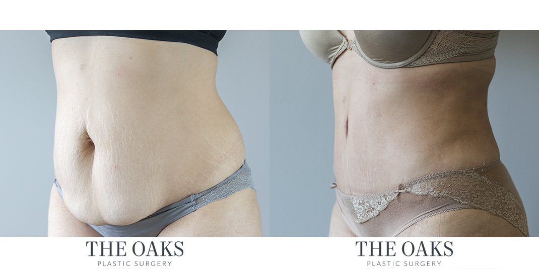 Houston Tummy Tuck Before & After The Oaks Plastic Surgery | TOPS #1