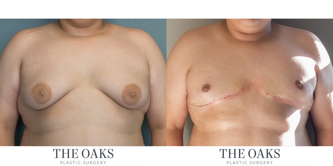 Male Breast Reduction Houston Before & After #1 | Dr. Danielle Andry