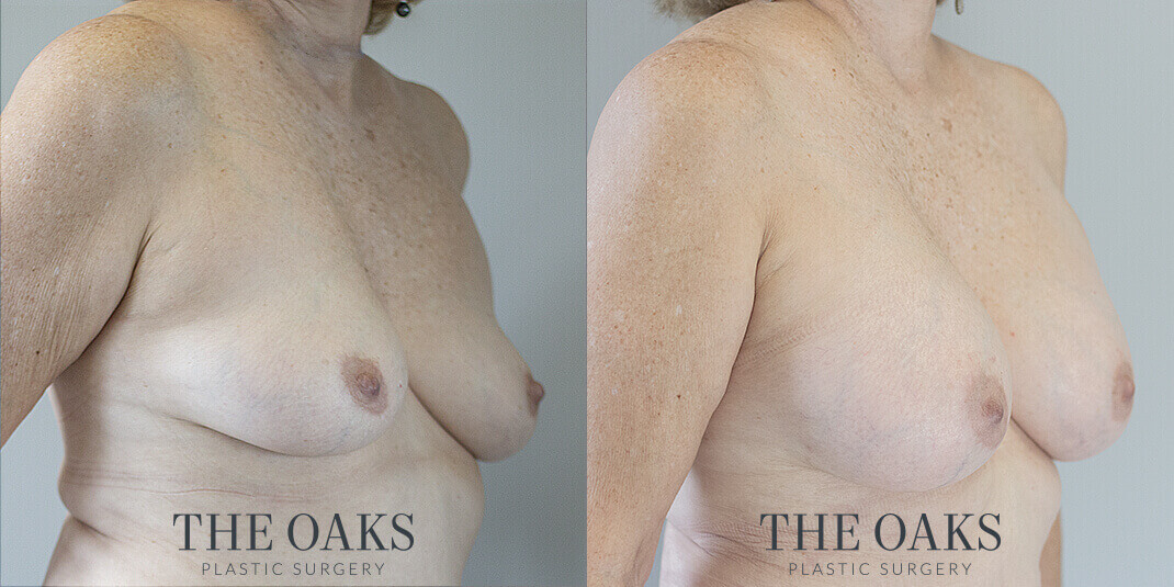 Houston Breast Augmentation Before & After | TOPS