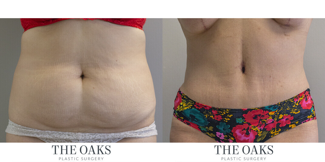 Tummy Tuck Houston Before & After