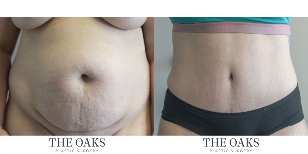 Houston Tummy Tuck Before & After | TOPS #1