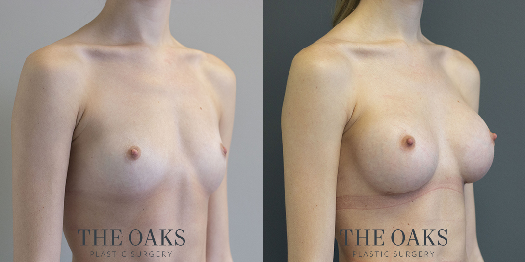 Breast Augmentation Houston Before & After #1 | Dr. Danielle Andry