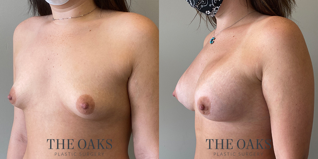 Breast Augmentation Houston Before & After | TOPS #1