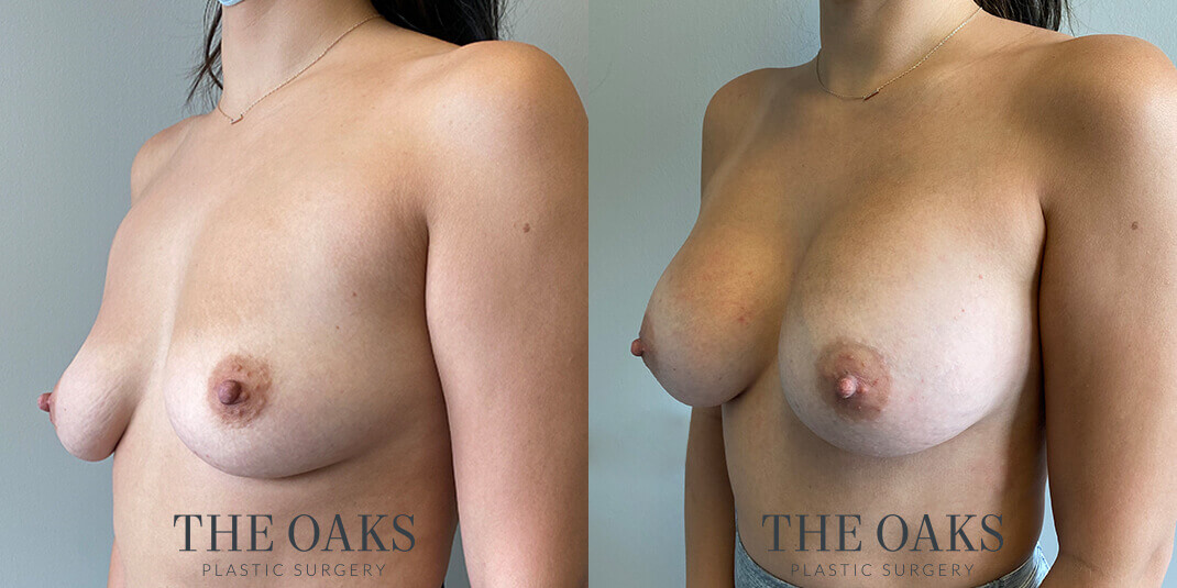 Houston Breast Augmentation Before & After | TOPS #1