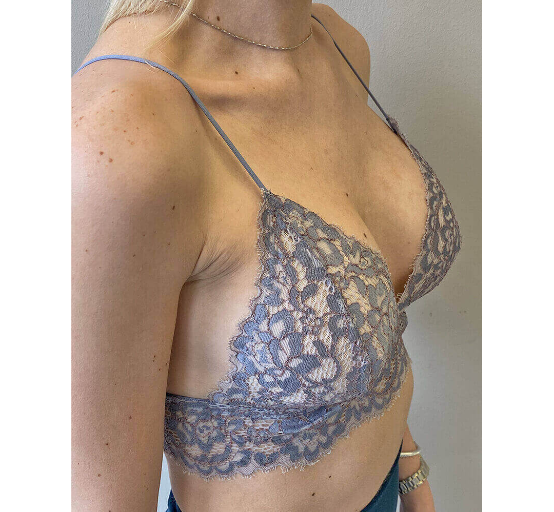 Breast Augmentation Houston After | Dr. Andry