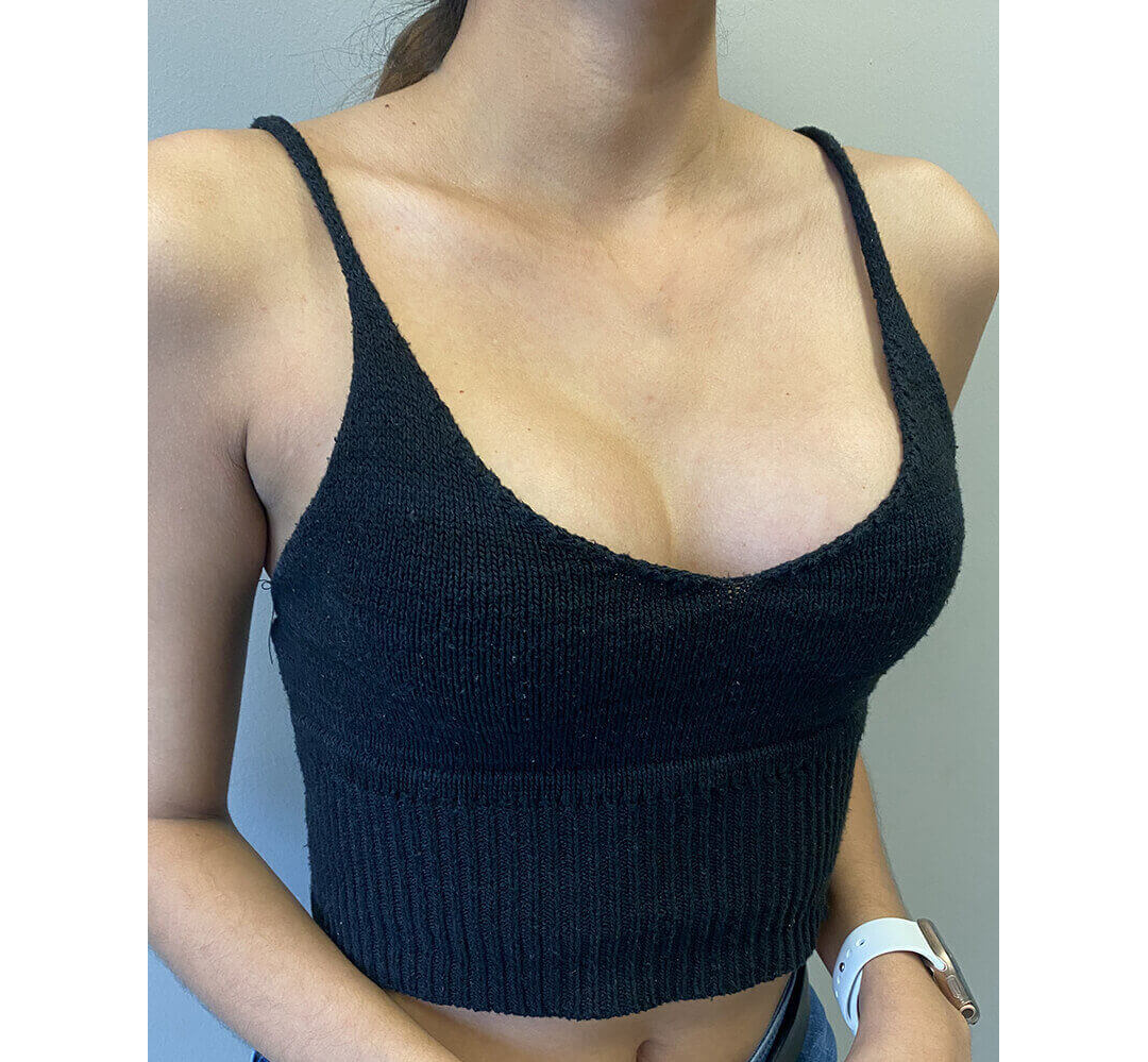 Breast Augmentation Houston After | Dr. Wijay